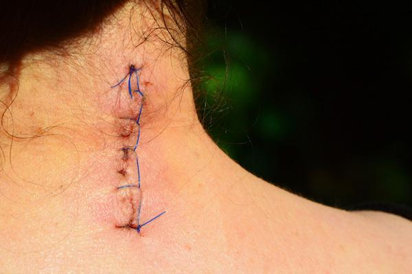 litteken behandeling
